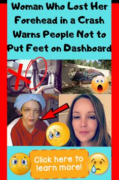 Woman Who Lost Her Forehead In A Crash Warning Others Not To Put Feet On Dashboard Weird Facts, Fun Facts, Remember The Time, Maybe One Day, Funny Pins, Funny Design, Losing Her, New Pins, Hot Actresses