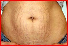 Chá milagroso para eliminar a gordura da barriga e desinchar o corpo! Mekka, Loose Weight, Mousse, Hair Beauty, Pasta, Fruit, Remover, Bolo Fit, Mang Thai