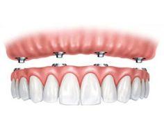 FastNewSmile® All-On-4 Dental Implants Dallas