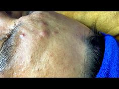 Pimple Popping, Pimples, Spa, Relax, Cakes, Youtube, Cake Makers, Kuchen, Cake