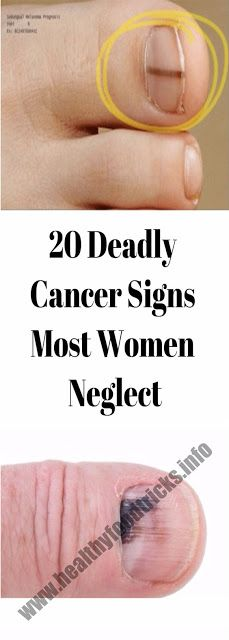 20 DEADLY CANCER SIGNS MOST WOMEN NEGLECT