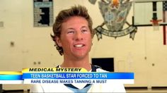 Meet a high school basketball star who must tan to treat his rare disease: http://abcn.ws/Up2BE1