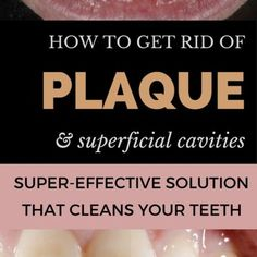 How to Get Rid of Plaque and Superficial Cavities at Home: Super-Effective Solution That Cleans Your Teeth