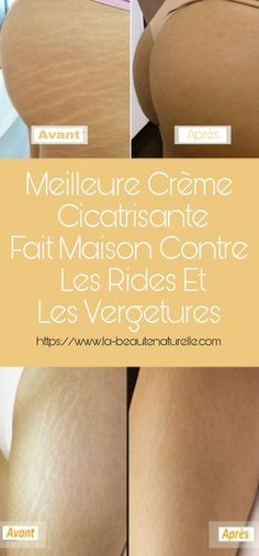 Best homemade healing cream for wrinkles and stretch marks Cellulite Scrub, Anti Cellulite, Diy Beauty, Beauty Skin, Beauty Games, Younger Skin, Les Rides, Natural Cosmetics, Stretch Marks