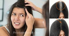 Debido al estrés o simplemente por envejecimiento, el cabello pierde la melanina y salen canas. Sin embargo, como muchas otras cosas en nuestro cuerpo, las canas también se heredan.\r\n\r\n[ad]\r\n\r\nA pesar de que teñirse el cabello es una opción popular para cubrir las canas también es un proceso dañino. A continuación, te presentamos unos remedios caseros para las canas que te ayudará a mantener el color de tu cabello sin maltratarlo.\r\n\r\n\r\n¿Por qué salen canas tempranas?\r\nMuchas…