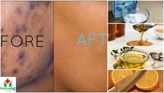 How to Remove & Fade Away Black Spots & Dark Spots on Face - Get Rid of ...