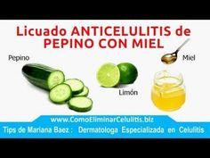 Cómo eliminar la celulitis rápido?? / How to remove cellulite fast?? - MikoSaa - YouTube