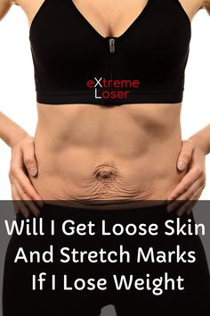Will I Get Loose Skin And Stretch Marks If I Lose Weight Get Loose, 200 Pounds, Lose Weight, Weight Loss, Loose Skin, Skin Firming, Stretch Marks, Losing Me, Lost