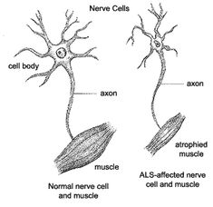 """Amyotrophic lateral sclerosis (ALS), otherwise known as """"Lou Gehrig's Disease"""", is a disease which involves advancing neurodegenerative disease that has an effect on the nerve cells of the brain as well as the spinal cord."""