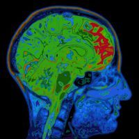 Cognitive Health May Depend on Cardiovascular Factors