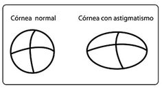 Illustration of a normal cornea and a cornea with astigmatism Eyes Problems, Cool Eyes, Amazing Eyes, Helping Others, Disorders, Learning, Laser, Graphics, Contouring