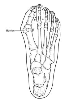 """Bunions are often described as a bump on the side of the big toe. But a bunion is more than that. The visible bump actually reflects changes in the bony framework of the front part of the foot. With a bunion, the big toe leans toward the second toe, rather than pointing straight ahead. This throws the bones out of alignment, producing the bunion's """"bump."""""""