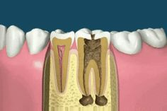 The root canal treatment procedure includes removing the nerves, irrigating and cleaning the infection and debris from the tooth canals. A material called gutta-percha is used for the root filling. The cavity is sealed by a composite/amalgam filling.