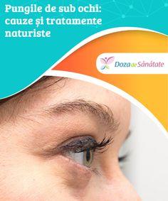 varicoză și cercuri sub ochi