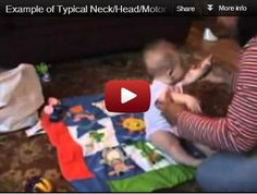 Head Lag and Autism -  Pinned by @PediaStaff – Please Visit http://ht.ly/63sNt for all our pediatric therapy pins