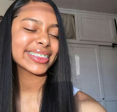 Cute Girls With Braces, Cute Braces Colors, Girl With Acne, Braces Tips, Curly Hair Styles, Natural Hair Styles, Brace Face, Light Skin Girls, Teeth Braces