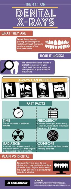 Found a great infographic on dental x-rays.  We often get questions and concerns about them:  Are they safe? (yes!  Plus, we've gone digital for a while now, and it exposes you to less radiation than traditional x-rays)  Why do we have to do x-rays? (so we can detect problems early on, before they become bigger problems)  Can't I have them next time? (you always have the option of postponing dental x-rays, however it is in your best interest for early detection of dental issues.