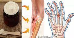 Terapia Transdermica di Magnesio – La crema curativa fai da te
