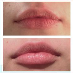 before after lips Juvederm Lip Augmentation/maintaining the natural look and shape of the lips by only enhancing the volume Juvederm Before And After, Botox Alternative, Lip Augmentation, Lip Injections, Kissable Lips, Perfect Lips, Lip Fillers, Natural Lips, Paris