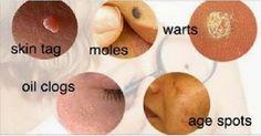 Mira estos Remedios naturales para eliminar verrugas, lunares y manchas de la edad..!!! | Vive Alegre Vive Sano