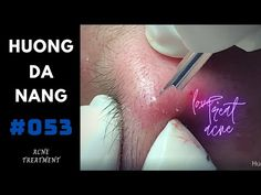 Blackheads On Face, Pimples, Ear Pimple, Covering Acne, Tractor Decor, Whitehead Removal, Blackhead Extraction, Grey Hair Styles For Women, Bald Hair