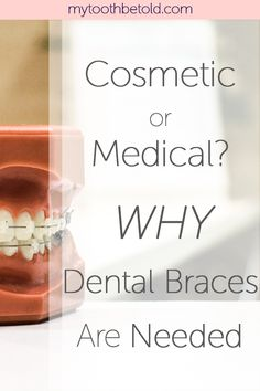 You will be surprised at what an impact orthodontics can make on your overall body health!
