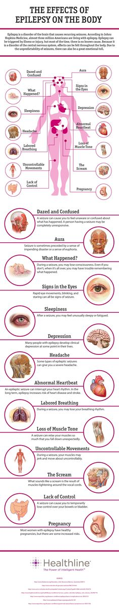 The Effects of Epilepsy on the Body. Interactive chart from Healthline Corp