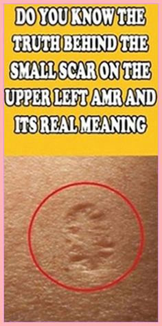 Have you ever wondered what that small scar on the upper left arm is? You might have seen it on some people, or you might even have it. Well, it is from being vaccinated from small pox. The vaccine wa Medicine Book, Herbal Medicine, Natural Medicine, Health And Fitness Articles, Health And Nutrition, Fitness Tips, Health Fitness, Gut Health, Nutrition Tips
