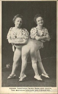 1000+ ideas about Human Oddities on Pinterest   Conjoined Twins ...