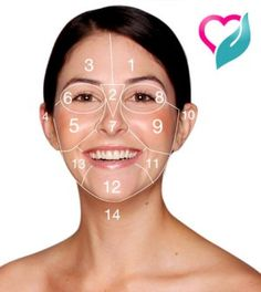A Chinese map of acne that tells you why you get certain pimples on certain parts of your face and what your acne means. Interactive acne face map and face mapping for acne. Pimples On Buttocks, Pimples On Chin, Pimples Under The Skin, Gesicht Mapping, Doterra Acne, Face Mapping, Acne Causes, Acne Breakout, Beauty