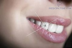 Oh my !!!     Shining Tooth Jewel Piercing