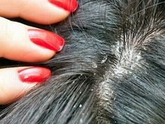 Перхоть в волосах человека