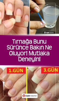 Look what happens when you push this on the fingernail Tırnağa bunu sürünce bakın ne oluyor ! By applying these natural methods you will have long nails and you will also get rid of nail fungus and nail yellowing! Diy Hair Loss Treatment, Oil For Hair Loss, Hair Falling Out, Nail Fungus, Healthy Nails, Prevent Hair Loss, Long Nails, Beauty Secrets, Beauty Hacks