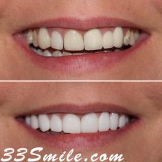 Success Story Alert! You dont have to live with bad or old cosmetic dentistry. We can fix it! We were so happy with this result and so was our patient. Heres what she had to say: Since the moment I walked into CDA the staff was so welcoming friendly and informative. The team really listened to my wants and needs. Dr. Moore made me feel comfortable about my decision. The entire team made my dream smile come true and I cannot thank them enough. I feel like I will always be in good hands with Dental Cosmetics, Dental Procedures, Success Story, Cosmetic Dentistry, Beautiful Smile, Hands, Live, Instagram, Dental Caps