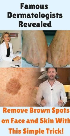 Famous Dermatologist Revealed: Remove Brown Spots on Face and Skin With This Simple Trick! Famous Dermatologist Revealed: Remove Brown Spots on Face and Skin With This Simple Trick! Health Tips For Women, Health Advice, Health And Beauty, Dark Patches On Skin, Cellulite, Age Spot Removal, Best Age Spot Remover, Brown Spots On Skin, Beauty Tricks