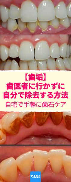Plaque, how to remove at home without going to the dentist care soda Causes Of Mouth Ulcers, Mouth Sores, Cassia Cinnamon, Honey And Cinnamon, Tartar Removal, Common Spices, Oral Surgery, Oral Hygiene, Beauty