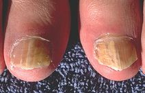 Ringworm of the nails (tinea unguium) - a type of onychomycoses What Causes Toenail Fungus, Best Toenail Fungus Treatment, Toenail Fungus Home Remedies, Nail Infection, Brittle Toenails, Nail Disorders, Nail Conditions, Nature, Health