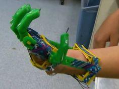 Pai imprime em 3D mão biônica para filho de 12 anos http://exame.abril.com.br/tecnologia/noticias/pai-imprime-em-3d-mao-bionica-para-filho-de-12-anos