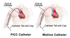 picc vs midline | Peripherally Inserted Central Catheters And Midline Catheters - Care ...