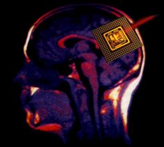 Participate in a neuronal implant study or receive an implant once they become available.