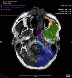 Deep spaces of the head and neck: annotated MRI | Radiology Case | Radiopaedia.org