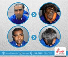 Successful result after hair transplant