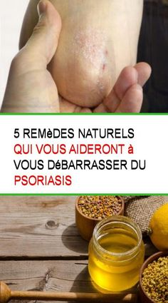 5 remèdes naturels qui vous aideront à vous débarrasser du psoriasis #Remede #Remedes #Aide #Debarrasser #Naturels #Psoriasis #Psoriasis Le Psoriasis, Oyster Card, What Can I Do, Oysters, Fruit, Health, Aide, Food, Psoriasis Remedies