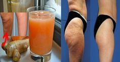 En muchos lugares a la celulitis se le conoce como la piel naranja por el parecido de la textura brumosa de la cascara de la fruta, pero en realidad son unos bultitos de grasa en la piel que se acumulan en el estomago, muslo, pompas o brazos.