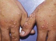 Mantar hastalığı nedir Mantarlar, bir tür yaşayan ama görünmeyen canlılardır. Bulunduğumuz mekanlarda ve vücudumuzda bakteriler gibi pek çok mantar bulunur. Bu mantarlar, uygun ve elverişli ortamı...