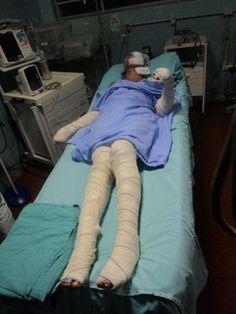 RS Notícias: Jovem tem 80% do corpo queimado por companheiro em...