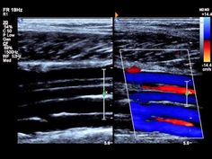 peroneal vein - YouTube