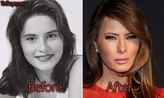 Melania Trump plastic surgery is not only on her face. Beside signs of Botox and facelift, Donald Trump's wife also shows result of boob job. Facelift Before And After, Botox Before And After, Celebrities Before And After, Before After Photo, Plastic Surgery Quotes, Bad Plastic Surgeries, Bad Celebrity Plastic Surgery, Trump Melania, Mascara Tips