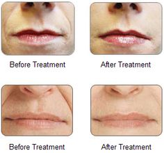 Restylane/Perlane - Are FDA approved cosmetic dermal fillers that replace lost volume and restore youthful contours to the skin to smooth away moderate to severe facial wrinkles and folds such as the lines from your nose to the corners of your mouth(nasolabial folds) and lips. It is an immediate and long-lasting solution to reducing the appearance of furrows. The benefits should be visible for 6-12 months depending on the location of the treatment and the nature of your skin. Call…