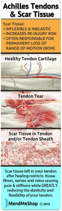 Scar Tissue development accelerates when the achilles tendon is constantly stressed or re-injured. Each time the achilles is injured, a bit more scar tissue will result and ultimately lead to further weakness of the tendon. Knee Tendonitis, Ligament Injury, Knee Injury, Achilles Tendon, Shoulder Tendonitis, Natural Remedies For Congestion, Homeopathic Remedies, Health Remedies, Tendon Tear
